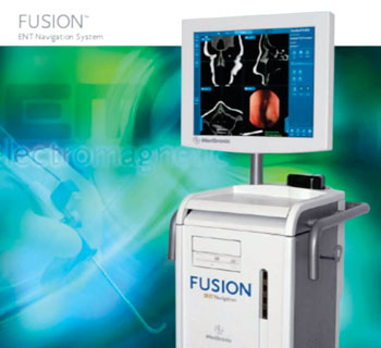Image: The Medtronic Fusion ENT Navigation System (Photo courtesy of Medtronic).