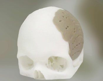 Image: An OPSFD implant designed to reconstruct part of the cranium (Photo courtesy of OPM).