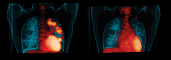"""Image: """"Hot spots"""" of infection in a patient's lungs before treatment (left). Disease improvement after six months of taking the drug linezolid (right) (Photo courtesy of the University of Pittsburgh)."""