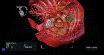 Image: Composite patient anatomy on the True3D Viewer (Photo courtesy of EchoPixel).