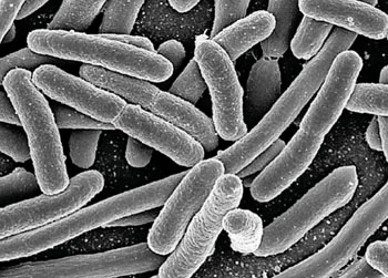 Image: Scanning electron micrograph (SEM) of Escherichia coli, rod-shaped bacteria, which were grown in a culture (Photo courtesy of US National Institute of Allergy and Infectious Diseases).
