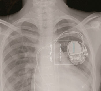 Image: Comparative sizes of fetal and adult pacemakers (Photo courtesy of Children's Hospital Los Angeles).