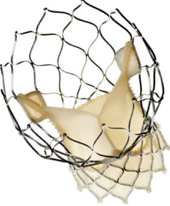 Image: The Medtronic CoreValve system (Photo courtesy of Medtronic).