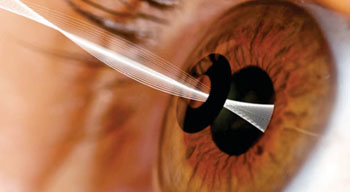 Image: The KAMRA corneal inlay (Photo courtesy of AcuFocus).