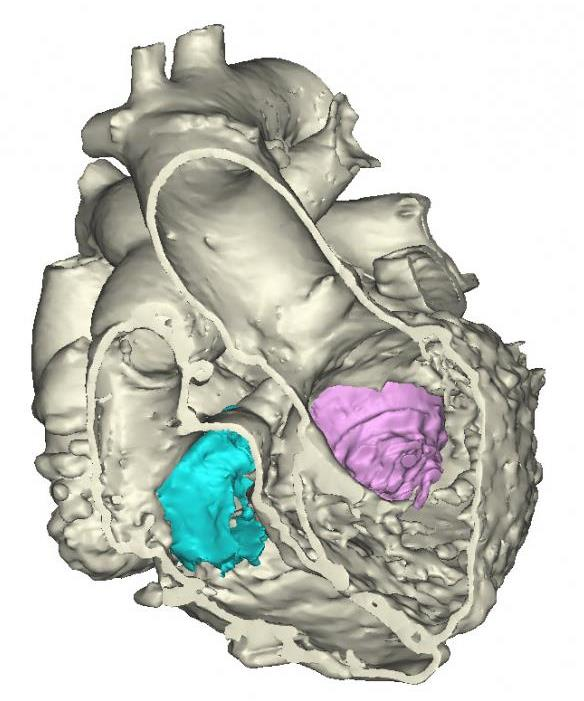 Image: 3-D Model of the Heart (Photo courtesy of Materialise).