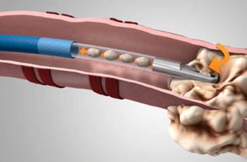 Image: The GenCut core lung biopsy system (Photo courtesy of Medtronic).