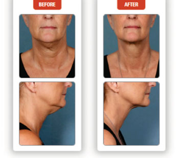 Image: Effects of Kybella: Unretouched photos of clinical trial patient (Sex: F, age: 55, BMI unchanged: 21.8 kg/m2) taken before and after 5 treatment sessions (Photo courtesy of Kythera Biopharmaceuticals).