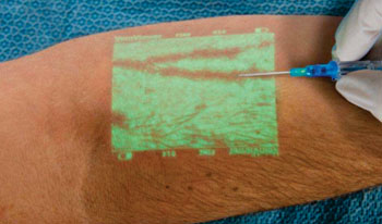 Image: The VeinViewer Vision2 projected vein image (Photo courtesy of Christie Medical Holdings).