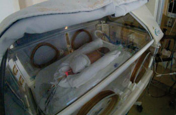Image: Premature baby receiving parenteral nutrition (Photo courtesy of the University of Montreal).