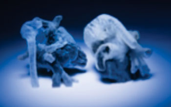 Image: New system from MIT and Boston Children's Hospital that can convert MRI scans into 3-D-printed heart models within a number of hours (Photo courtesy of Bryce Vickmark, MIT News).