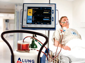 Image: The Hemolung Respiratory Assist System (RAS) (Photo courtesy of ALung Technologies).