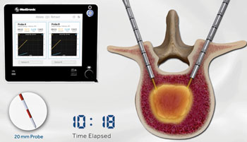 Image: The OsteoCool RF Ablation System (Photo courtesy of Medtronic).