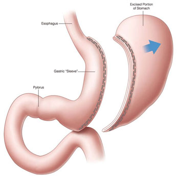 Image: According to a new study, sleeve gastrectomy improves LV systolic function and contributes to reverse LV remodeling in both genders (Photo courtesy of SPL).